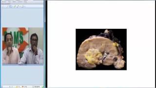 Radio  Path Series 4 (Tuberous Sclerosis)