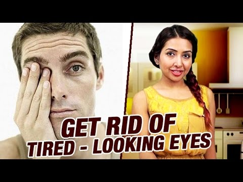 How to Get Rid of Tired-Looking Eyes | Get Rid of Dark Circles | Home Cure Remedies