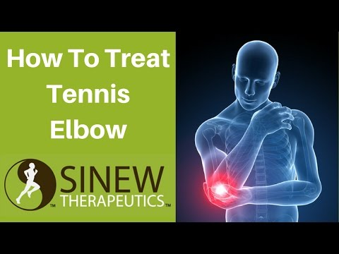 How To Treat Tennis Elbow and Speed Recovery
