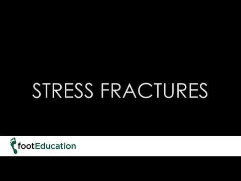 FootEd-Stress Fractures of the Foot