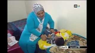 #x202b;سهيل طفل يعاني من تشوه خلقي على مستوى  المريء ينتظر اجراء عملية ثالثة للحد من معاناته اليومية#x202c;lrm;