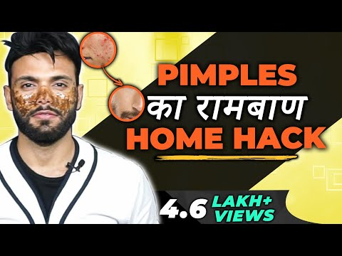 1 Home Hack to Remove Pimple From Face in hindi | How to remove pimples from face for men in hindi