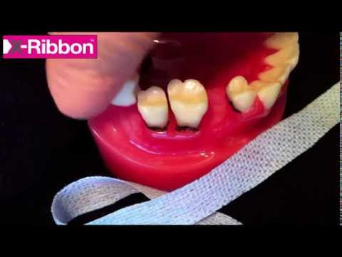 Hygienist shows how to floss PERIO teeth and IMPLANTS