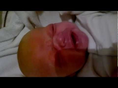 whooping cough in 7 week old baby