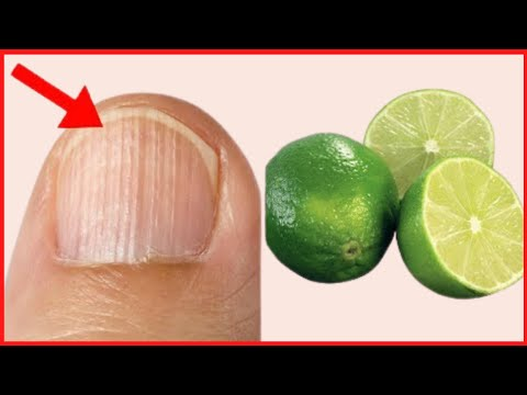 Top 3 Natural Home Remedies for Black Lines on Nails| How to get rid of ridges in fingernails