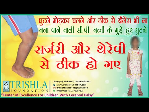 knee hyperextension & cerebral palsy affected child : Testimonial from her parents