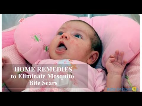 Home remedies to eliminate mosquito bite scars