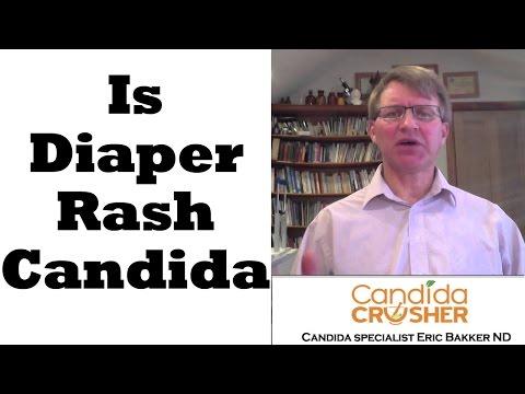 Is Diaper Rash Candida?