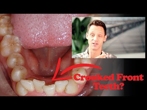 How Can I Fix My Crooked Teeth?