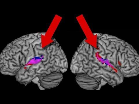 Do Human Brains Synchronise?