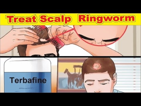 How to Treat Scalp  Ringworm Step by Step instructions