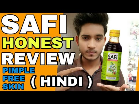 SAFI Removes Pimples ? | Hindi | SAFI FULL HONEST REVIEW | My Experience With SAFI