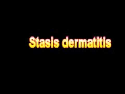 What Is The Definition Of Stasis dermatitis Medical School Terminology Dictionary