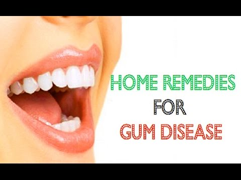 Home Remedies for Gum Disease | Periodontal Gum Disease Treatment