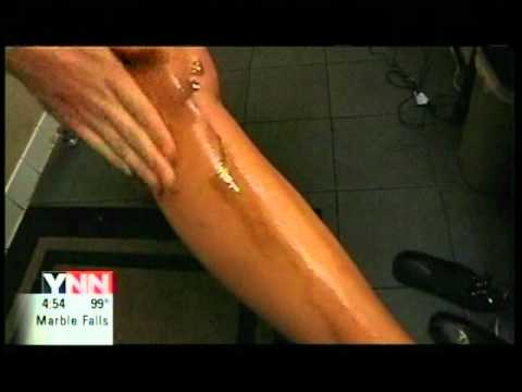 Health Implications of Tanning by Sun or Spray