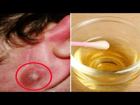 How to Get Rid of Blackheads in Ear at Home