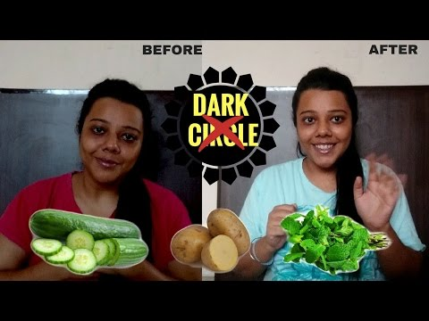 My 7 day challenge to REDUCE dark circles and discoloration with potato, cucumber and mint juice.