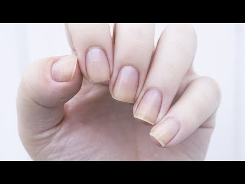 Mistakes That Are Making Your Nails Look Gross