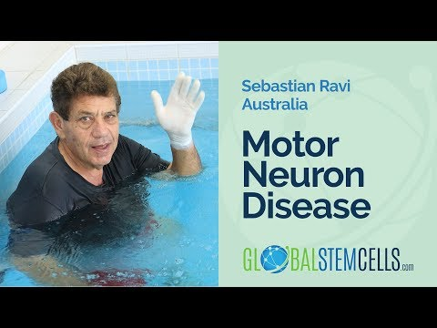 Motor Neuron Disease Patient From Australia Sebastian Feels Stronger after Stem Cell Treatment