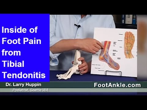 Inside of Foot Pain and Posterior Tibial Tendonitis Treatment – Seattle Foot Doctor