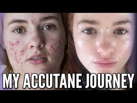 My Accutane Journey with Progress Photos and Relapse Experience!