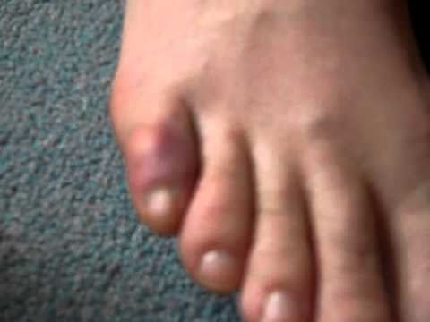 Help for Healing a Broken Toe