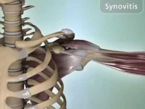 Synovitis of the Shoulder - DePuy Videos
