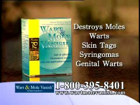 Home Mole Removal, Wart Removal Kit - Award Winning!