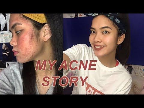 HOW I CLEARED MY SKIN IN ONE WEEK  // Janella Kim (PHILIPPINES)