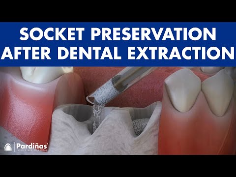Tooth extraction - Treatment for socket preservation ©