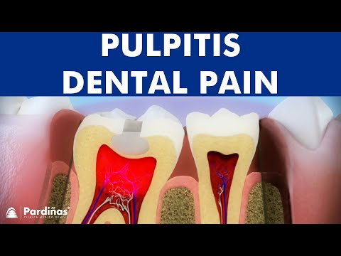 Pulpitis - Inflammation of dental pulp ©