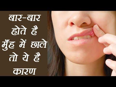 Mouth Ulcer Reason and treatment, बार-बार होते है मुँह में छाले तो ये है कारण | BoldSky