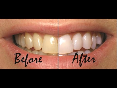 How to Have Natural White Teeth in 3 minutes (Works 100%)