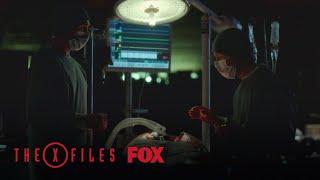 Doctors Open A Patients Body   Season 11 Ep. 9   THE X-FILES