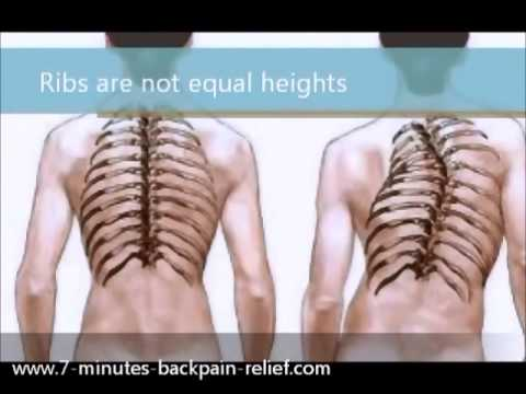 How To Treat Scoliosis
