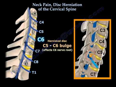 Neck Pain, Disc Herniation Of The Cervical Spine - Everything You Need To Know - Dr. Nabil Ebraheim