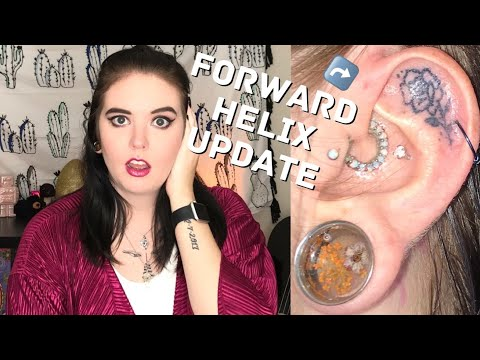 Forward Helix Update - scarring and healing 6 weeks after removal