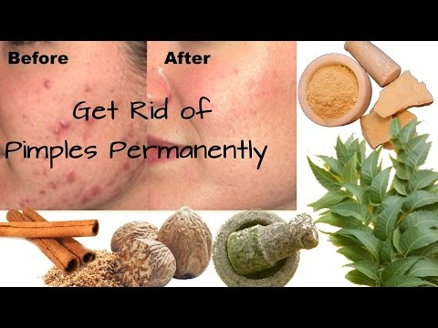 3 Ayurvedic Treatments to Remove Pimples Overnight