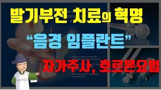 발기부전 치료의 혁명, 음경 임플란트 [남성갱년기편] 4편