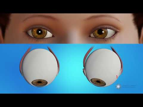 How is strabismus surgery done?