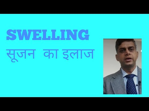 SWELLING सूजन  का इलाज