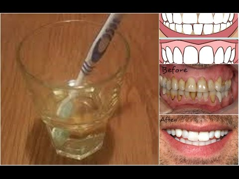 8 Natural Home Remedies to Tooth Enamel Loss Prevention Tips