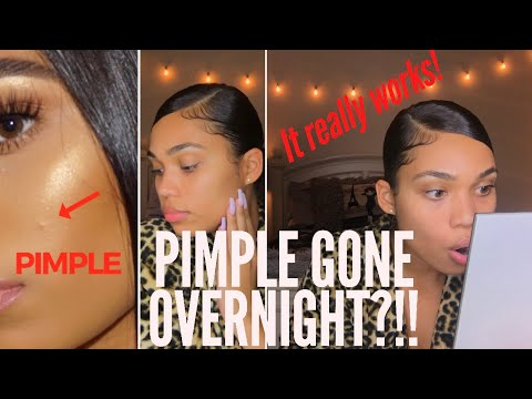 HOW TO: GET RID OF A PIMPLE OVERNIGHT | DRUGSTORE & HIGH END | Briana Monique'