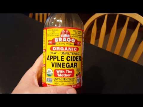 Apple cider vinegar for kidney stones.
