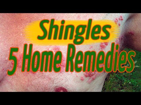 Shingles Home Remedies - 5 Effective Methods by How To Remove Herpes