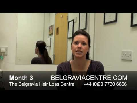 Hair Loss After Pregnancy - Video Diary Month 3