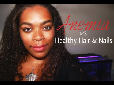 Anemia vs Healthy Hair and Nails