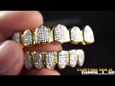 Custom Gold Grillz - 18k Gold Teeth Diamond Set