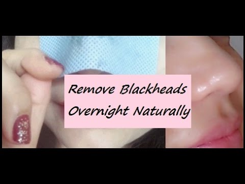 How to Remove Blackheads Overnight Naturally