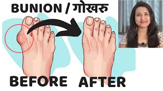 LIPOMA|#चर्बीकीगांठ|DISCUSSION AND HOMEOPATHIC APPROACH